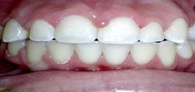 تخلخل الأسنان في المنام لابن سيرين