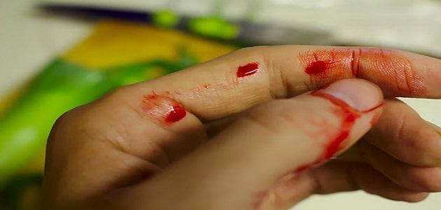 تفسير حلم الدم في اليد